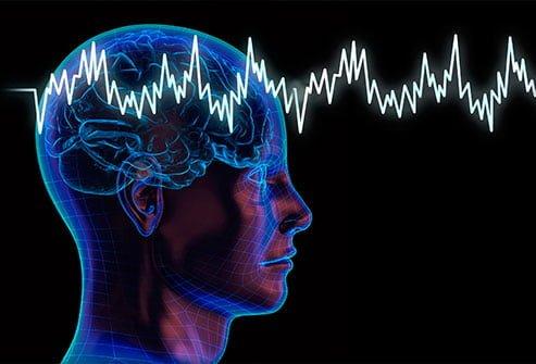 Diagnostic différentiel : Électroencéphalogramme