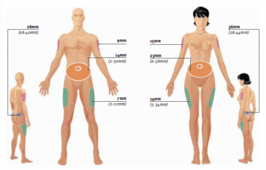 Zones d'injection sous-cutanée