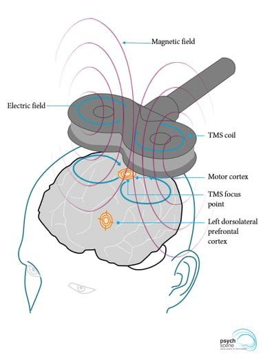 stimulation magnétique transcrânienne