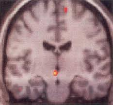 activationHypothalamusLorsCriseAVF