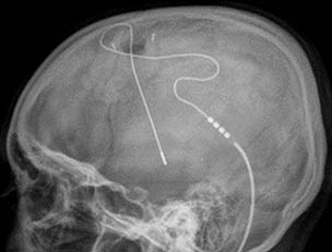 stimulation Hypothalamus